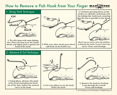 remove, hook, how to